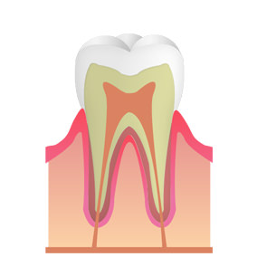 CO:ごく初期のむし歯(初期)