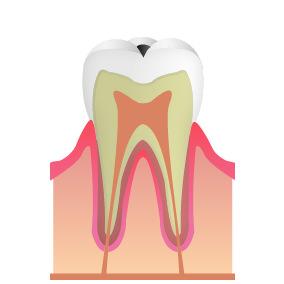C1:エナメル質のむし歯(初期~中期)