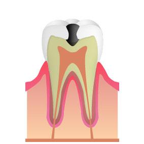 C2:象牙質のむし歯(中期)