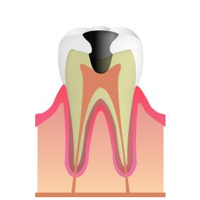 C3:神経にまで達したむし歯(中期~末期)