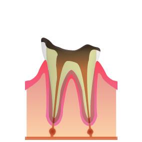 C4:歯根にまで達したむし歯(末期)