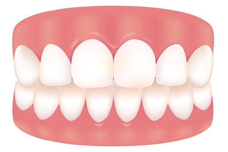 軽度の歯肉炎
