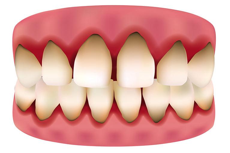 中度の歯肉炎